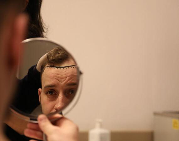 FUE haartransplantatie methode
