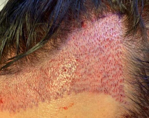 FUE Saffier haartransplantatie