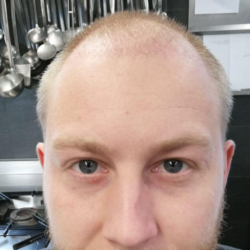 dag na haartransplantatie