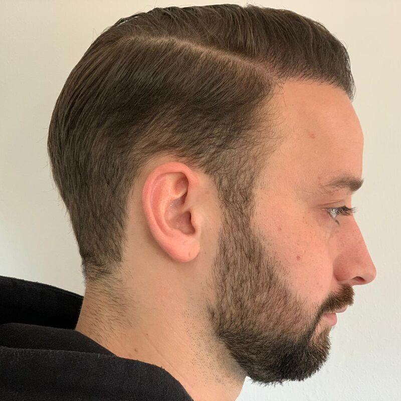 Joren haartransplantatie turkije