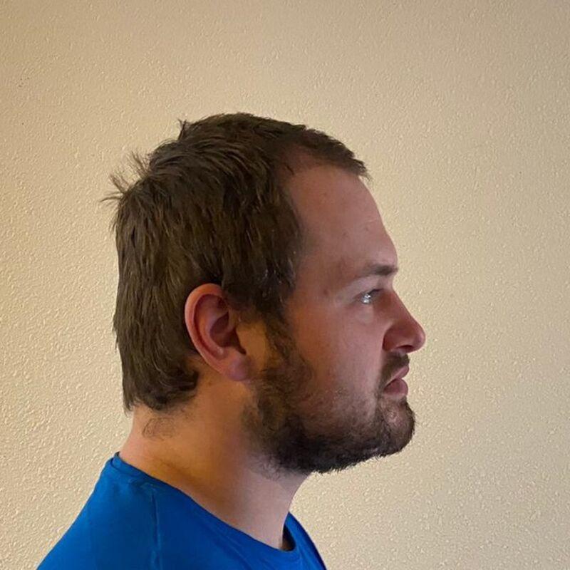 Utopiaan Gerrit bij Esteworld voor zijn haartransplantatie