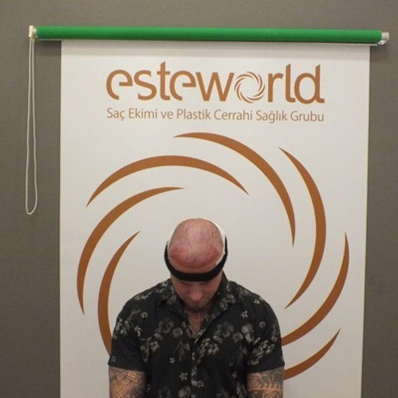 Ongewenst resultaat in Nederland, 2e ronde bij Esteworld