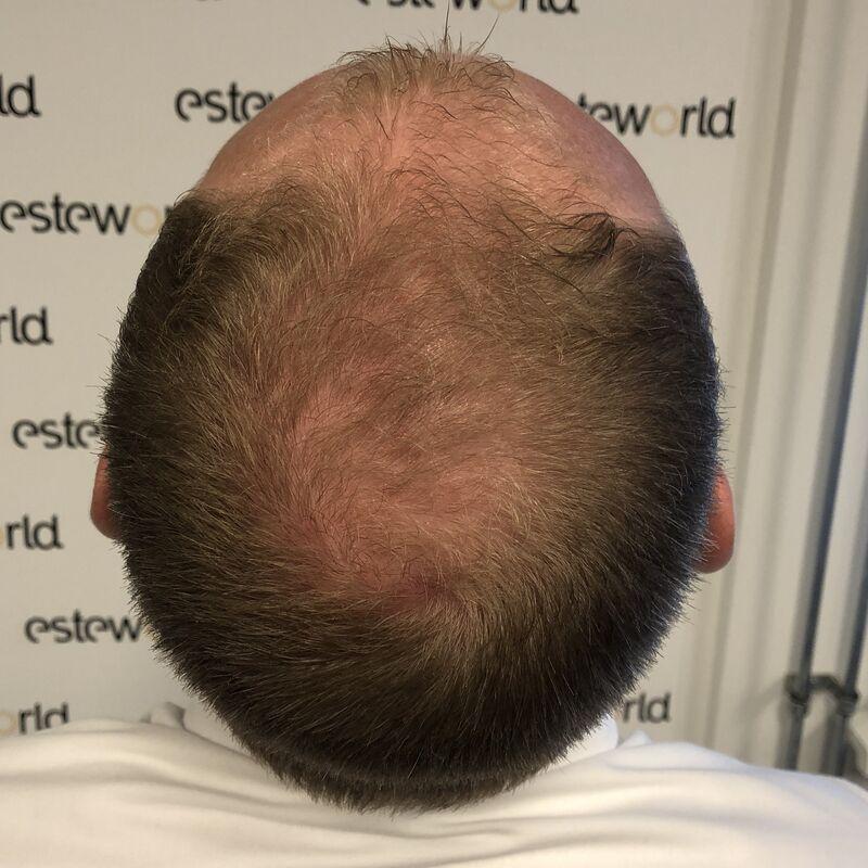 Zeer tevreden met haartransplantatie resultaat