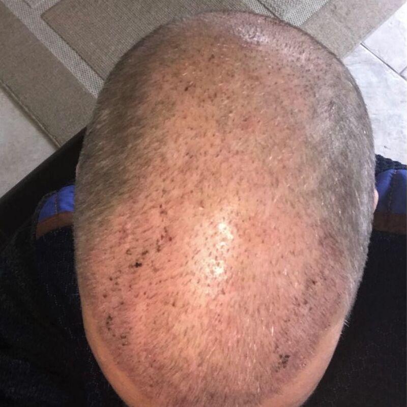Harri,  super haartransplantatie Turkije