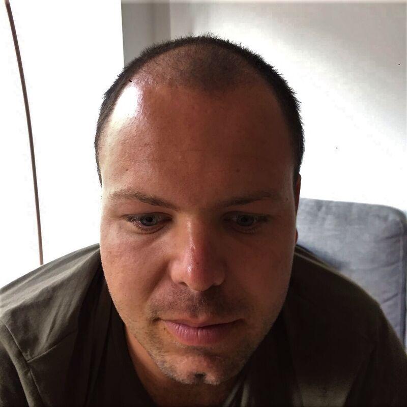 Betaalbare haartransplantatie Turkije