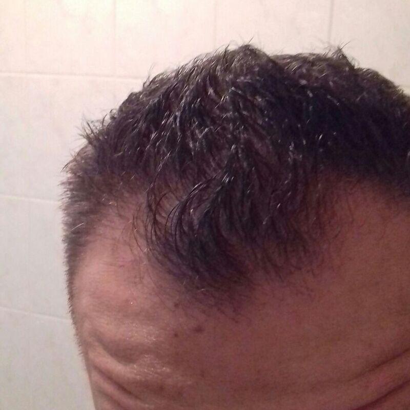 Yve, Goedkope haartransplantatie Turkije