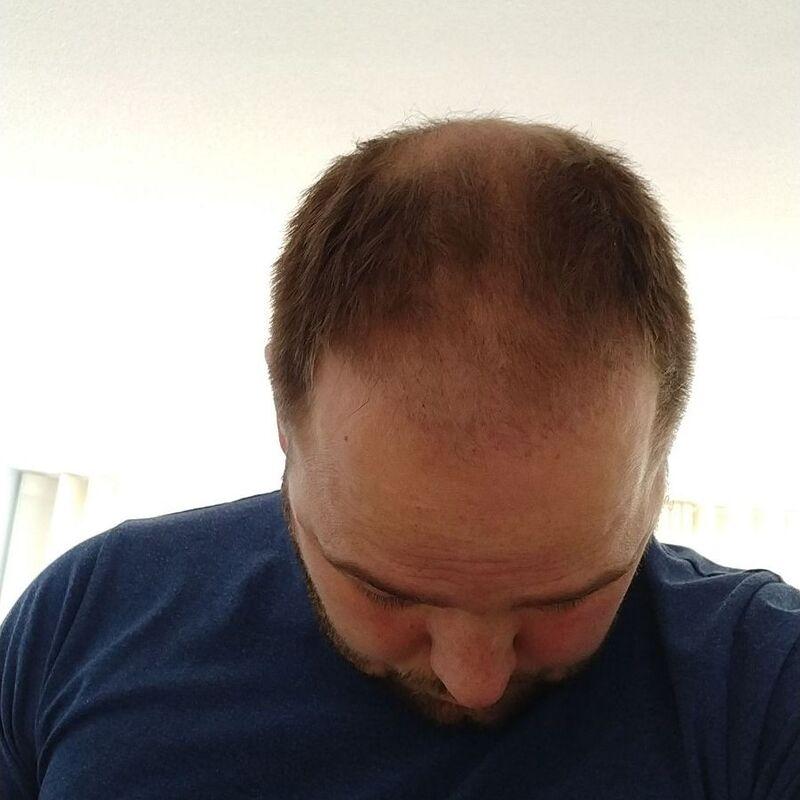 Ik wil de keuze hebben om mijn haar kort te scheren!
