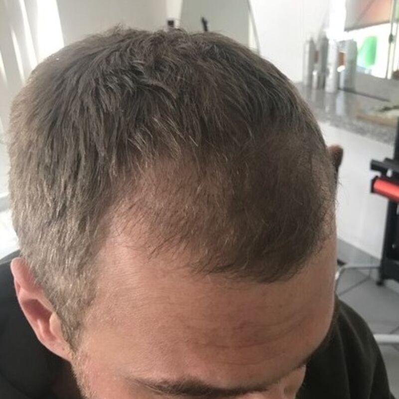 Naar Turkije voor een haartransplantatie! JA! Bij Esteworld haartransplantatie.