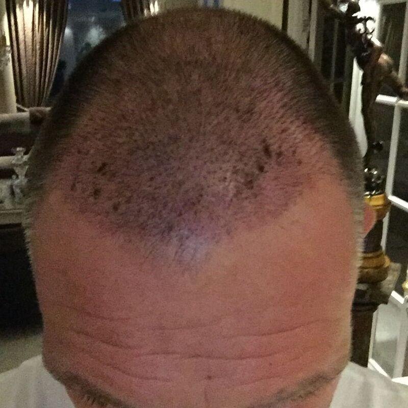 Nol, een 9 voor het hele proces van de haartransplantatie!