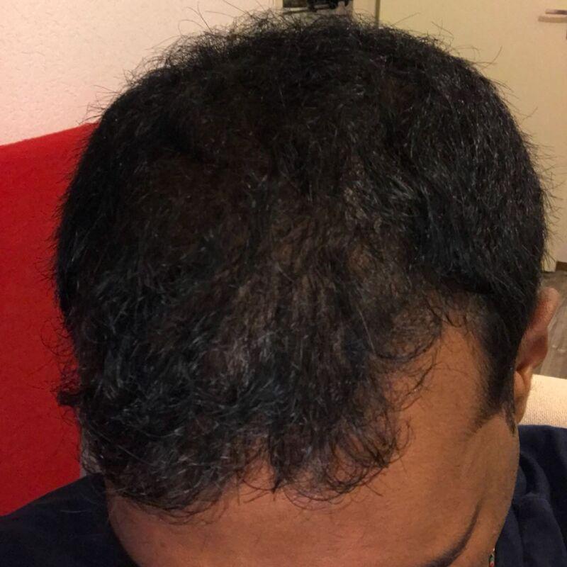 Kasan, 1/3de van kosten haartransplantatie in Nederland