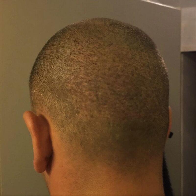 Eric, De hele haartransplantatie is perfect verlopen!