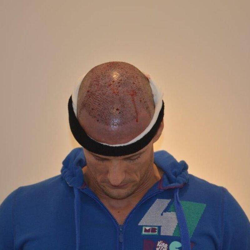 Eindresultaat van de haartransplantatie Dhr. Bos