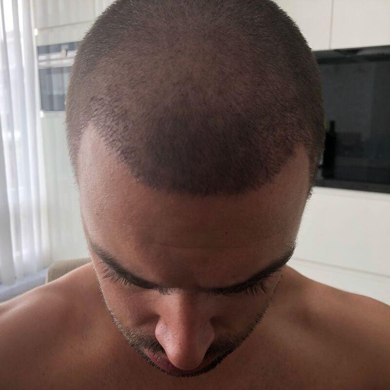 10+ voor de haartransplantatie in Turkije!