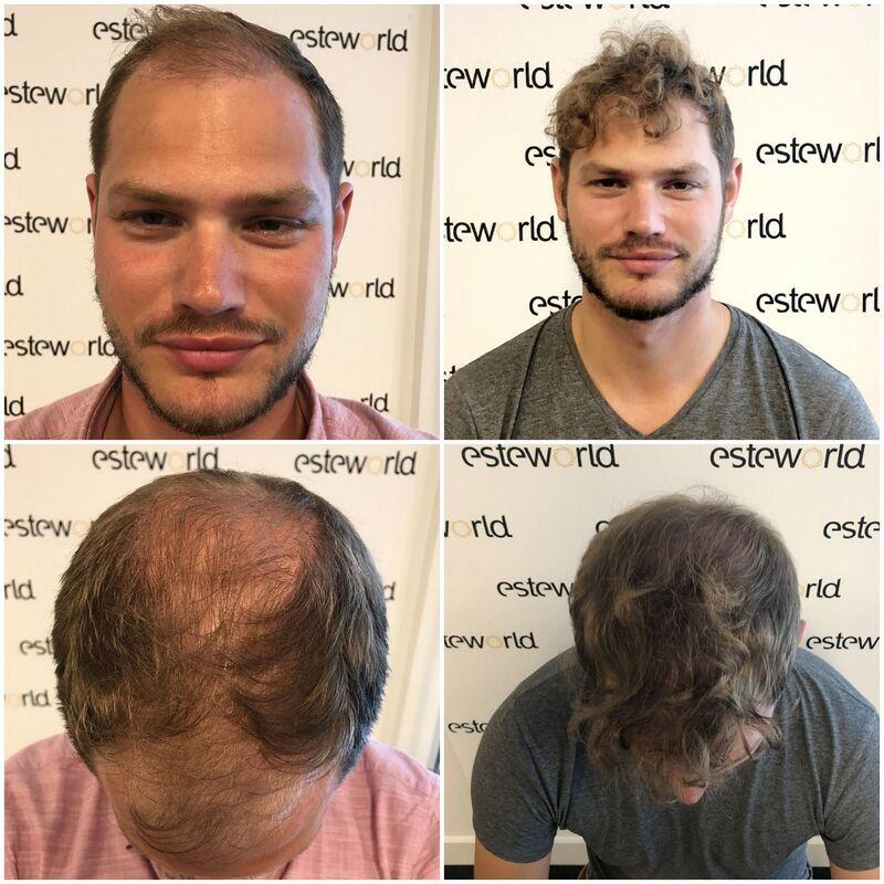 Haartransplantatie Coupe in Istanbul!