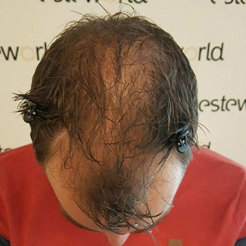 Wim, al jaren stoorde ik mezelf aan mijn inhammen en dunne haren!